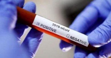20-летний украинец заразился коронавирусом Читайте подробнее: https://hub1news.com/20-%d0%bb%d0%b5%d1%82%d0%bd%d0%b8%d0%b9-%d1%83%d0%ba%d1%80%d0%b0%d0%b8%d0%bd%d0%b5%d1%86-%d0%b7%d0%b0%d1%80%d0%b0%d0%b7%d0%b8%d0%bb%d1%81%d1%8f-%d0%ba%d0%be%d1%80%d0%be%d0%bd%d0%b0%d0%b2%d0%b8%d1%80/