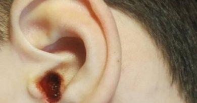 В Николаевской области врач на медосмотре расковырял ребенку ухо до кровавой жижи