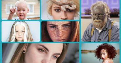"""""""Важливий ракурс"""". 28 лютого - це міжнародний день рідкісних захворювань. Діана Гаврилова"""